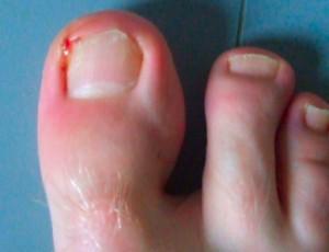 Cómo curar las uñas encarnadas